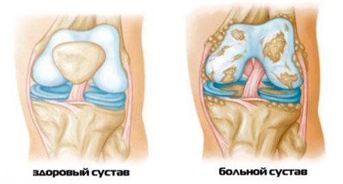 Последствия воспаления суставов
