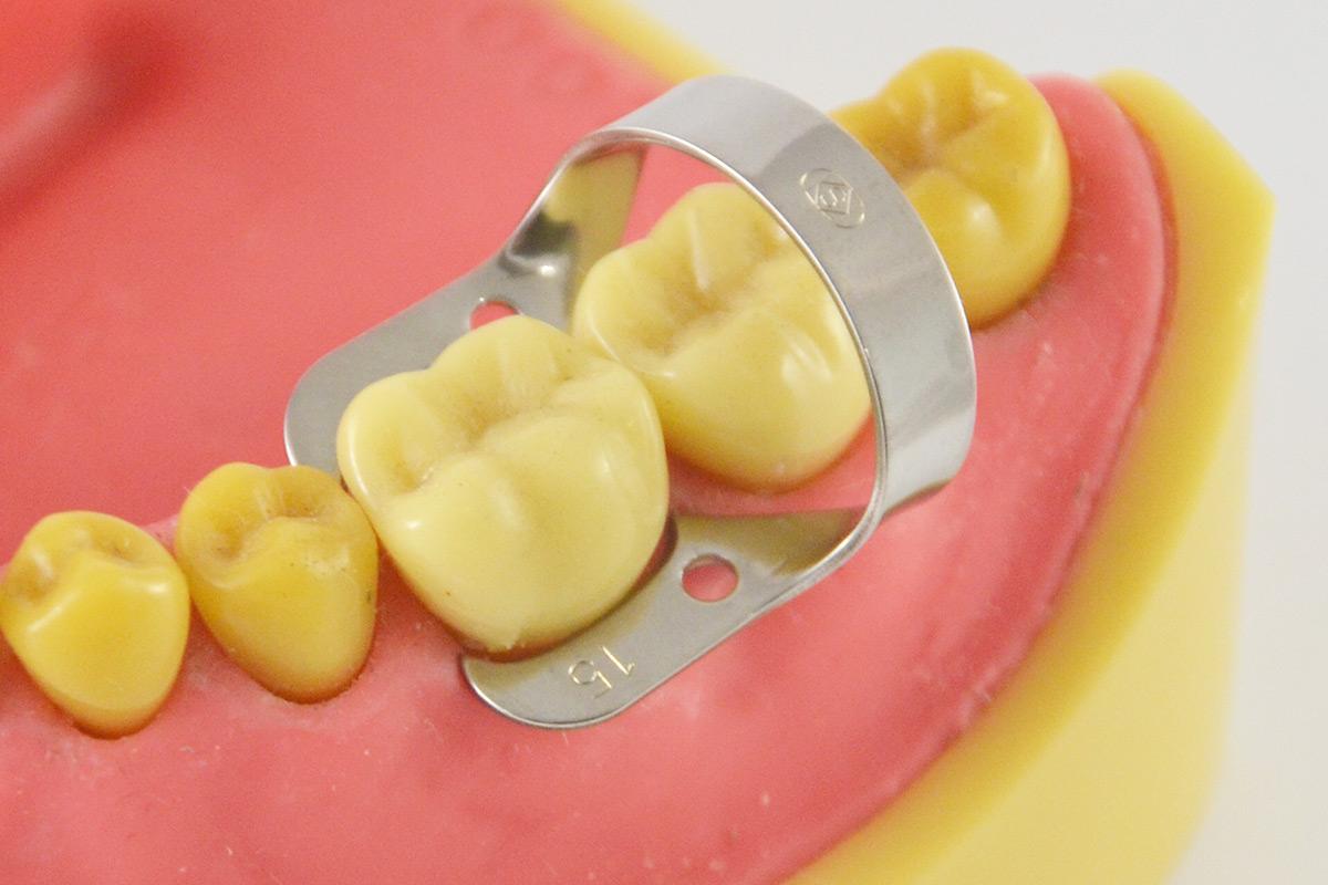 Кламмер - ортодонтические аппараты