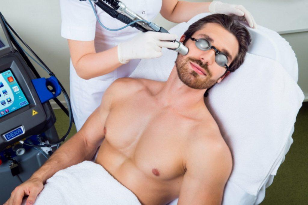 Лазерная эпиляция мужчин